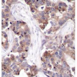 Stathmin 1 Phospho-Ser25 (STMN1 pS25) Antibody