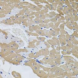 Calpastatin (CAST) Antibody