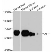 Western blot analysis of extracts of various cell lines, using AFP antibody (abx000589) at 1/1000 dilution.