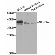 Western blot analysis of extracts of various cell lines, using NFKBIA antibody (abx001101) at 1/1000 dilution.