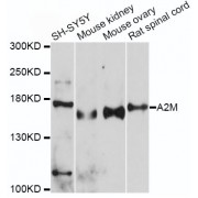 Western blot analysis of extracts of various cell lines, using A2M antibody (abx001324) at 1/500 dilution.