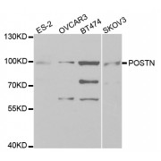 Western blot analysis of extracts of various cell lines, using POSTN antibody (abx001628) at 1/1000 dilution.