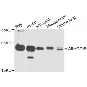 Western blot analysis of extracts of various cell lines, using ARHGDIB antibody (abx002693) at 1/1000 dilution.