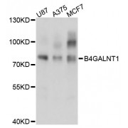 Western blot analysis of extracts of various cell lines, using B4GALNT1 antibody (abx002820) at 1:3000 dilution.