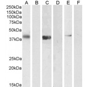 abx430380 (1 µg/ml) staining of U2OS (A) + peptide (B), (0.5 µg/ml) Jurkat (C) + peptide (D) and NIH3T3 (E) + peptide (F) cell lysate (35 µg protein in RIPA buffer). Detected by chemiluminescence.