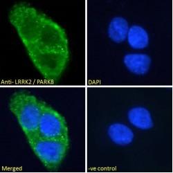 Leucine-Rich Repeat Serine/Threonine-Protein Kinase 2 (LRRK2) Antibody