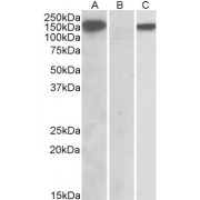 HEK293 lysate (10 µg protein in RIPA buffer) overexpressing Human NLRP2 with DYKDDDDK tag probed with abx430569 (1 µg/ml) in Lane A and probed with anti- DYKDDDDK Tag (1/5000) in lane C. Mock-transfected HEK293 probed with abx430569 (1mg/ml) in Lane B. Primary incubations were for 1 hour. Detected by chemiluminescence.