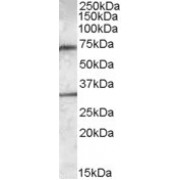 abx432650 (0.3 µg/ml) staining of Human Liver lysate (35 µg protein in RIPA buffer). Primary incubation was 1 hour. Detected by chemiluminescence.