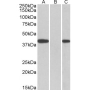 HEK293 lysate (10 µg protein in RIPA buffer) overexpressing Human FANCF with C-terminal MYC tag probed withabx432674 (0.5 µg/ml) in Lane A and probed with  anti-MYC Tag (1/1000) in lane C. Mock-transfected HEK293 probed wih abx432674 (1mg/ml) in Lane B. Primary incubations were for 1 hour. Detected by  chemiluminescence