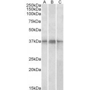 abx433128 (1 µg/ml) staining of Daudi, (A) Jurkat (B) and Jurkat nuclear (C) lysates (35 µg protein in RIPA buffer). Primary incubation was 1 hour. Detected by chemiluminescence