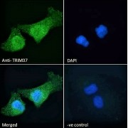 Immunofluorescence analysis of paraformaldehyde fixed HeLa cells, permeabilized with 0.15% Triton. Primary incubation 1hr (10 µg/ml) followed by AF488 secondary antibody (2 µg/ml), showing cytoplasmic and nuclear staining. The nuclear stain is DAPI (blue). Negative control: Unimmunized goat IgG (10 µg/ml) followed by AF488 secondary antibody (2 µg/ml).